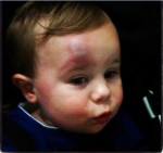 bump on toddler's head